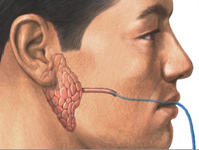 Diagram of contrast medium injected into the parotid gland duct