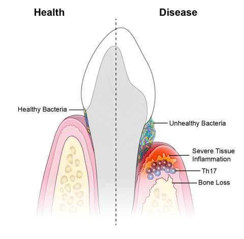 Illustration of tooth shows intact gum tissues in presence of healthy bacteria on the left; right side shows gum inflammation and bone loss in presence of unhealthy bacteria.