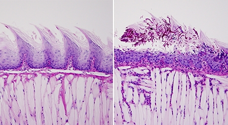 Compared to healthy mice (left), the protective barrier of tissue on the surface of the tongue in mice with APECED-like disease (right) developed Candida infection.