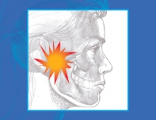 Facial drawing showing a pain point in the TMJ area