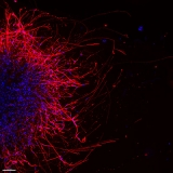 Image of oral cancer cells sending growth signals to nearby mouse sensory neurons via sprout projections called neurites.