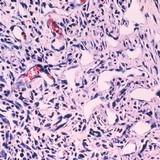 Kaposi's sarcoma cells (Source: National Cancer Institute)